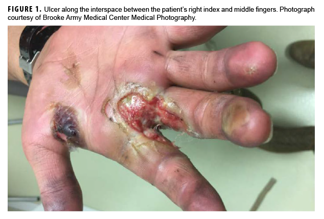 Ulcer along the interspace between the patient's right index and middle fingers. Photograph courtesy of Brooke Army Medical Center Medical Photography
