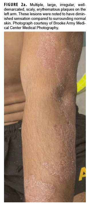 Multiple, large, irregular, welldemarcated, scaly, erythematous plaques on the left arm. These lesions were noted to have diminished sensation compared to surrounding normal skin. Photograph courtesy of Brooke Army Medical Center Medical Photography.