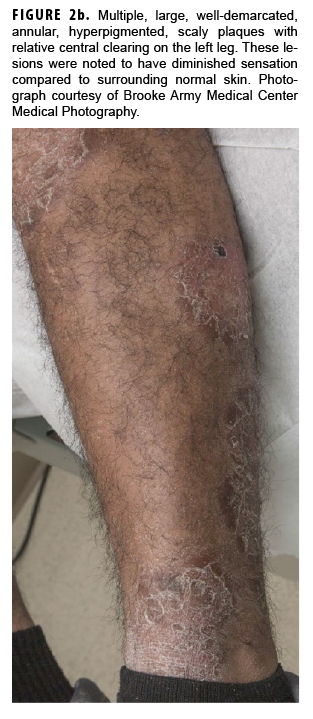 Multiple, large, well-demarcated, annular, hyperpigmented, scaly plaques with relative central clearing on the left leg. These lesions were noted to have diminished sensation compared to surrounding normal skin. Photograph courtesy of Brooke Army Medical Center Medical Photography.