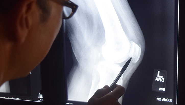 Man looking at X-Ray